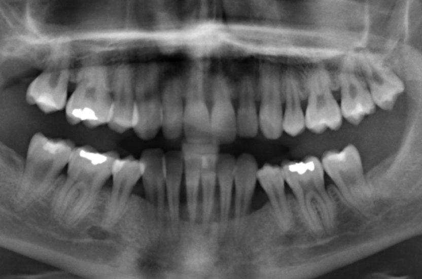 Das parodontale Ehlers-Danlos Syndrom