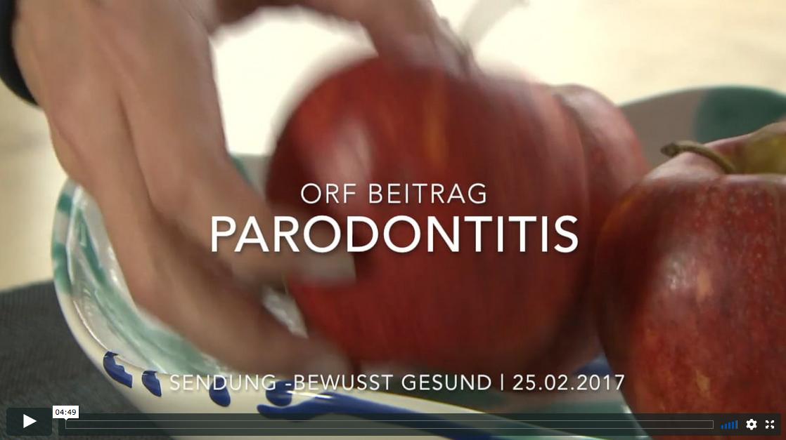 ORF Beitrag – Bewuss Gesund – Parodontitis